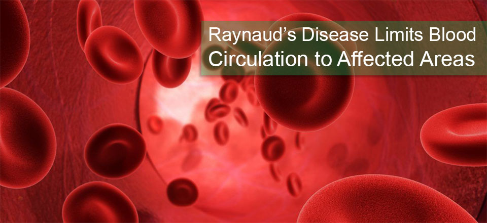 Blood Microcirculation and Raynaud's Gloves